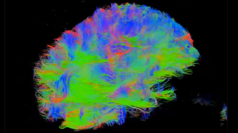 Future Lab: Mapping the Network in the Brain